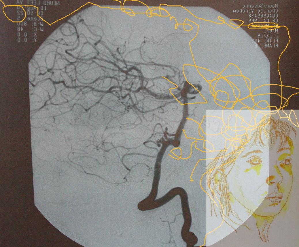 Ich (c) Foto und Zeichnungsüberlagerung von Susanne Haun